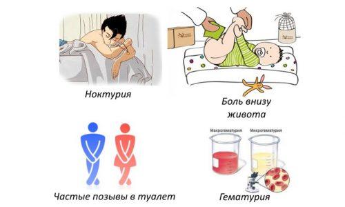 Симптомы цистита у детей