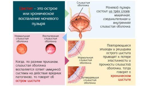 Наиболее эффективные лекарства от цистита для детей