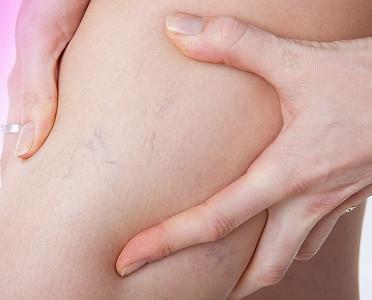 Тянет мышцы ног причины что при беременности