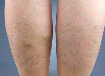 Причины отека правой ноги