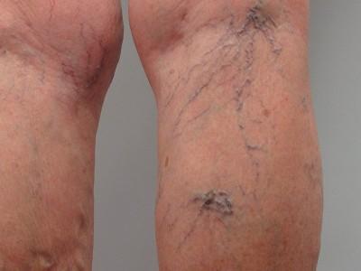 Как делать массаж ног при варикозном расширении вен