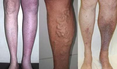 Удаление тромба в ноге