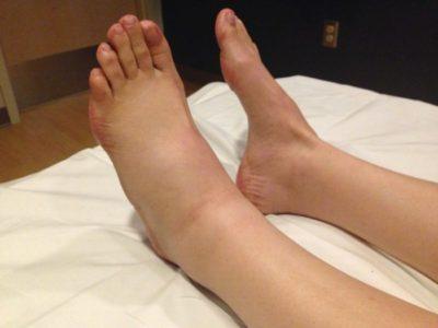 Отекает правая нога от колена до стопы, отек левой ноги до щиколотки