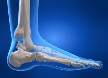 Почему возникает боль в пятке сбоку, с внутренней стороны стопы?