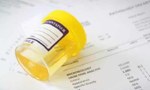 Диагностическим признаком цистита у мужчин является повышение количества лейкоцитов в моче