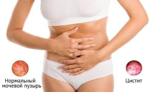 Разные виды цистита развиваются вследствие воспалительного поражения мочевого пузыря
