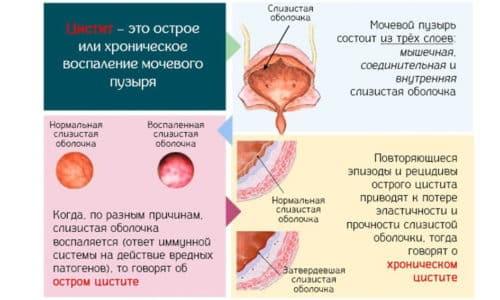 Воспаление мочевого пузыря является самым распространенным патологическим процессом среди широкого спектра урологических проблем