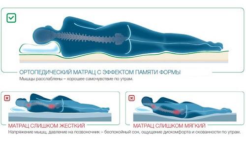 Конструкция матраса с эффектом памяти обволакивает человека и повторяет все контуры тела
