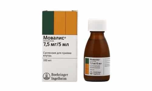 Мовалис оказывает лечебное действие при различных степенях остеоартроза