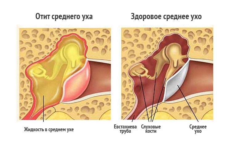 Увеличение узлов за ухом может вызвать отит