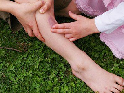 Ушиб ноги и она опухла что делать чем лечить в домашних условиях