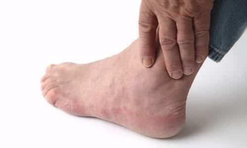 Боль в голеностопном суставе и верх стопы