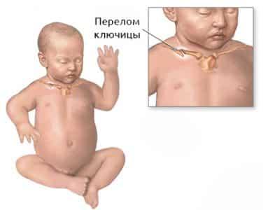 Оказание помощи ребенку