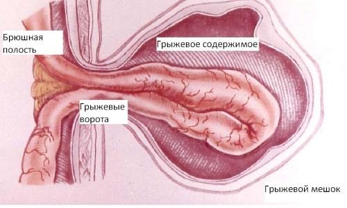 Грыжа брюшной области - опасное заболевание, имеющее неприятные симптомы и тяжелые последствия