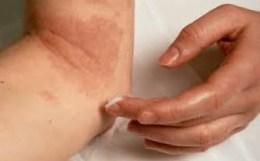 Медикаментозное лечение псориаза мазями