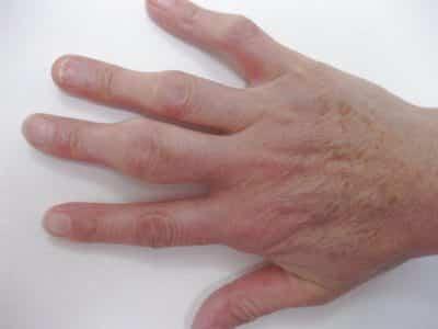 Специфика терапииушибленных пальцев