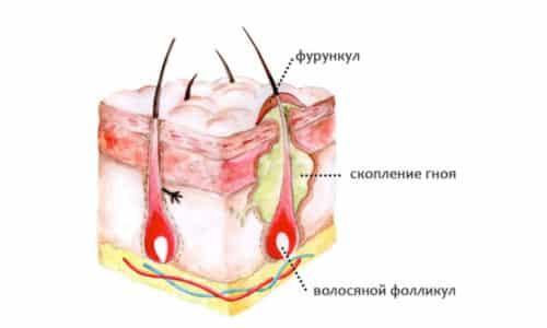 Фурункул на копчике чирей, лечение в домашних условиях как лечить
