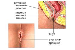Анальные трещины - причина крови при дефекации