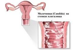 Схема молочницы