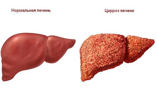 Цирроз печени - причина боли в голени