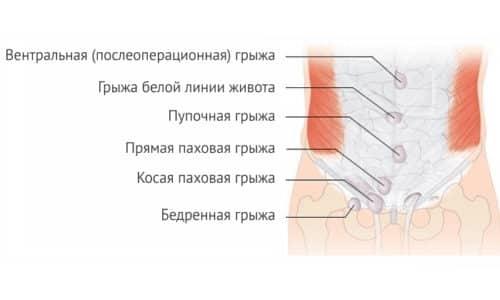 Грыжа белой линии в зоне живота - это болезненное для человека характерное выпячивание, сформировавшееся из-за роста грыжевого мешка и частичного перемещения органов