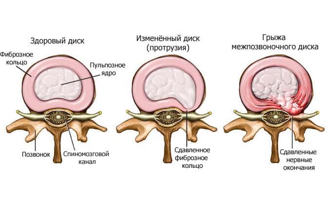Повреждения и травмы