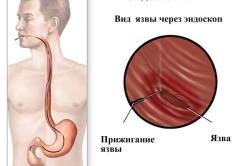 Эндоскопия при язвенной болезни