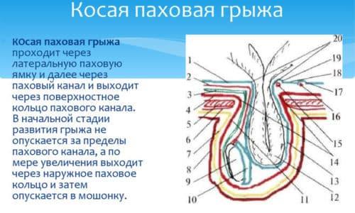 Косая - грыжевой мешок расположен латерально по отношению к надчревным артериям