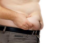 Ожирение как причина обильного потоотделения