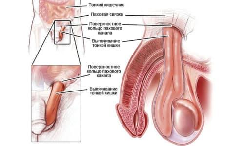 При паховой грыже органы брюшной полости выпадают через паховый канал, чаще всего данный вид встречается у мужчин