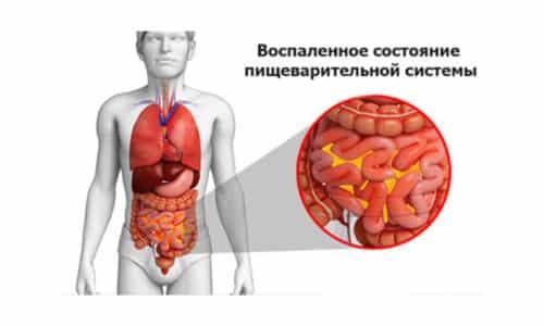 Перитонит - воспалительное поражение органов брюшной полости, сопровождается симптомами: сильные боли, напряжение стенок живота, тошнота, рвота, слабость, повышение температурных показателей и т.д