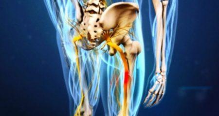 Лечение невралгии седалищного нерва