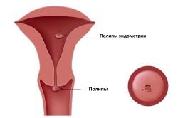 Схема полипов матки