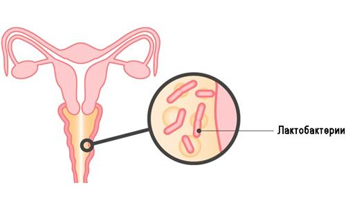 Проблема бактериального вагиноза