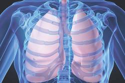 Туберкулез в числе причин сухого кашля