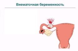 Внематочная беременность - причина светло коричневых выделений
