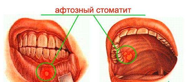 вирусный стоматит