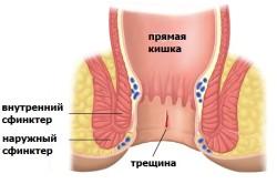 Схема анальной трещины