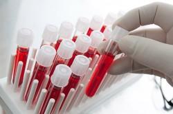 Анализ крови при кашле с мокротой