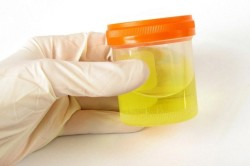 Анализ мочи при заболеваниях подвздошной кишки