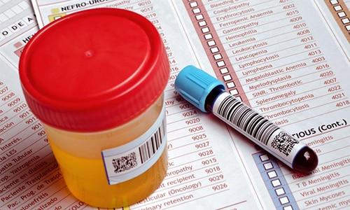 Перед операцией пациенту необходимо сдать общий и развернутый анализ крови, а также анализ урины