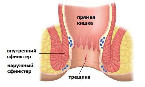 Схематическое изображение анальной трещины