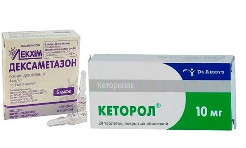 Кеторол и Дексаметазон - лекарственные средства, оказывающие при совместном использовании обезболивающее действие