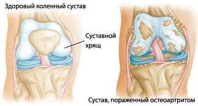 Виды артритов