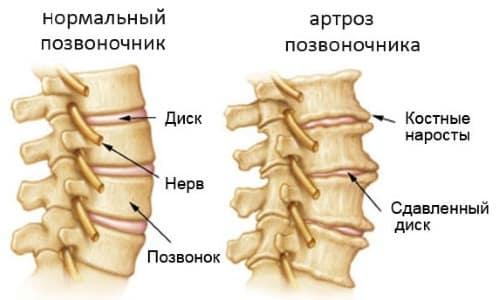 Область применения МРТ