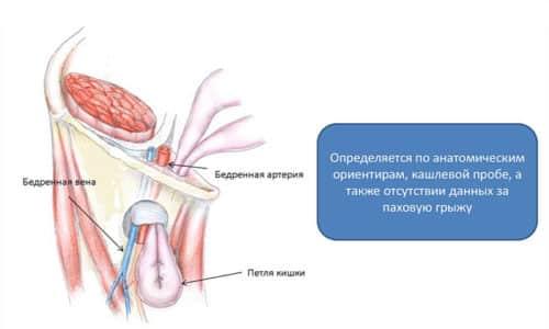 Бедренная грыжа - выпячивание, образующееся при выходе органов через бедренное кольцо