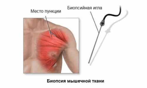 Биопсия мышечных тканей