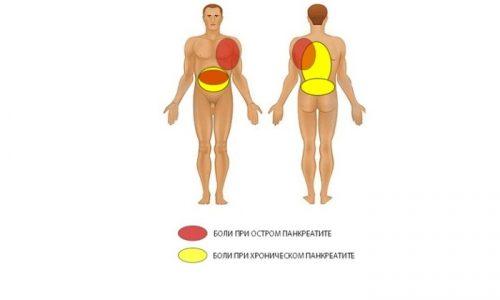 Локализация боли при остром и хроническом панкреатите