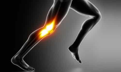 Проблема болей в колене