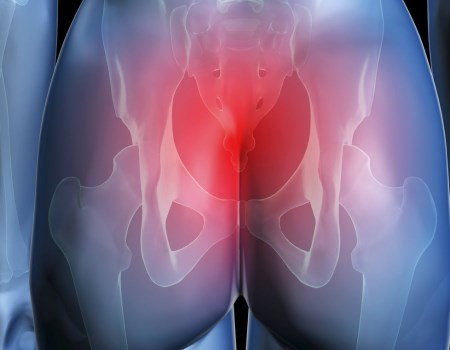Боль в крестце и ягодицах у мужчин и женщин: причины, лечение